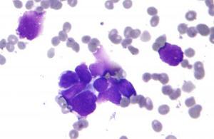 Células cancerígenas vistas no microscópio